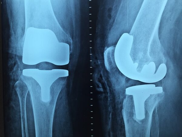 Shalby acquires implant assets from US-based Consensus Orthopedics